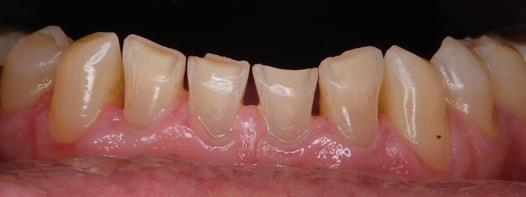 Почему разрушается эмаль зубов и можно ли решить эту проблему