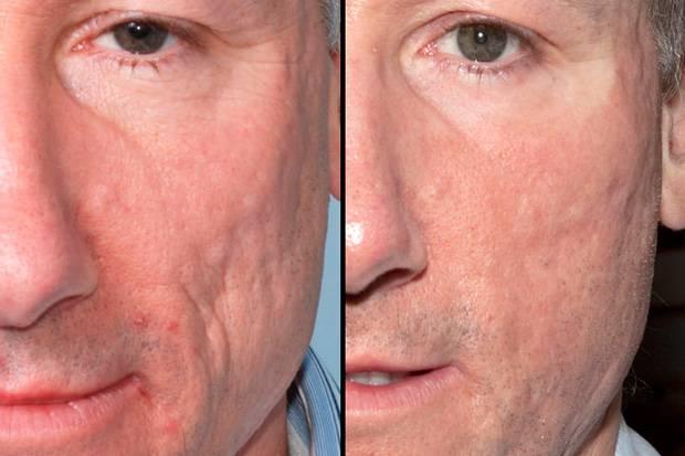 Контурная пластика лица как альтернатива хирургии