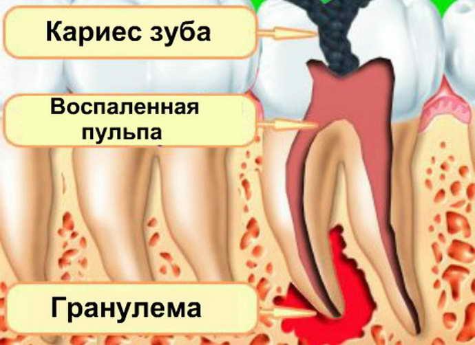 Методы лечения гранулемы зуба