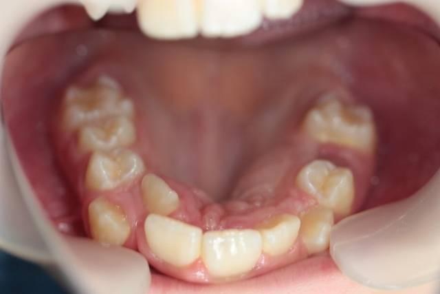«лишние зубы» или полиодонтия…