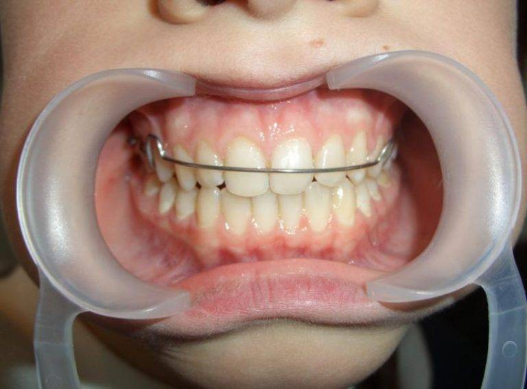 Ретейнеры на зубы после брекетов