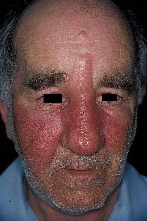 Эритематозная рожа на лице: что это такое и как выглядит?