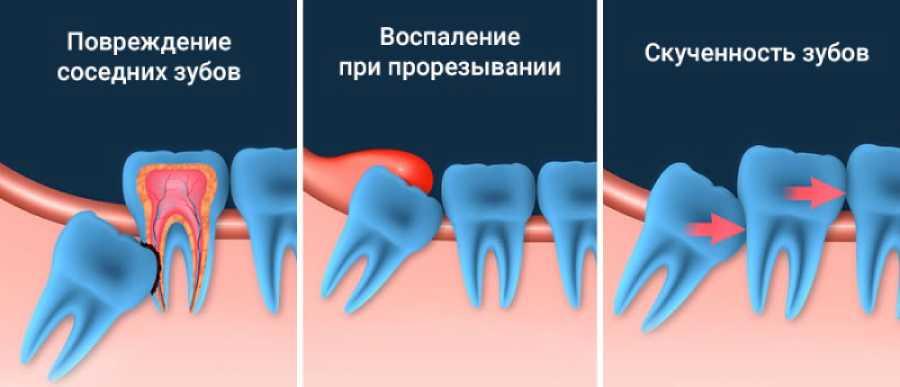 Вырвали зуб мудрости, теперь болит, что делать с болью после удаления