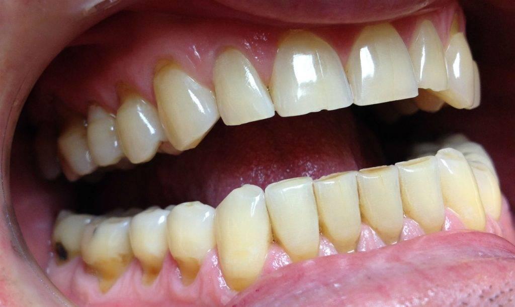 Клиновидный дефект твердых тканей зубов: что делать, как лечить, реставрация