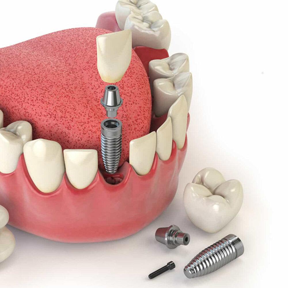 Рекомендации после имплантации зубов