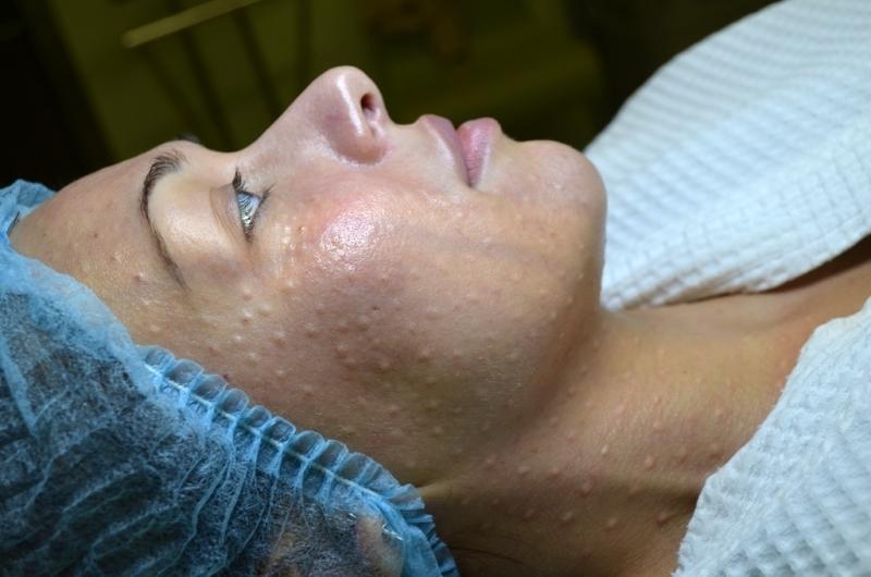 Мезотерапия грудных желез для сохранения формы и упругости груди