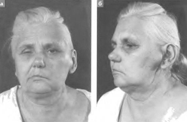 Удаление околоушной слюнной железы с сохранением лицевого нерва