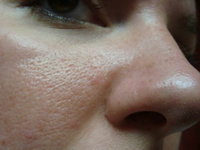 Как избавиться от жирной кожи на лице и чем можно убрать блеск в домашних условиях – 10 лучших рецептов