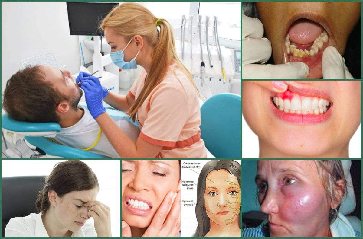 После удаления зуба болит голова