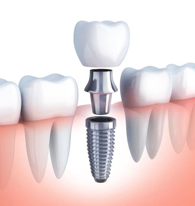 Абсолютные и относительные противопоказания к проведению имплантации зубов
