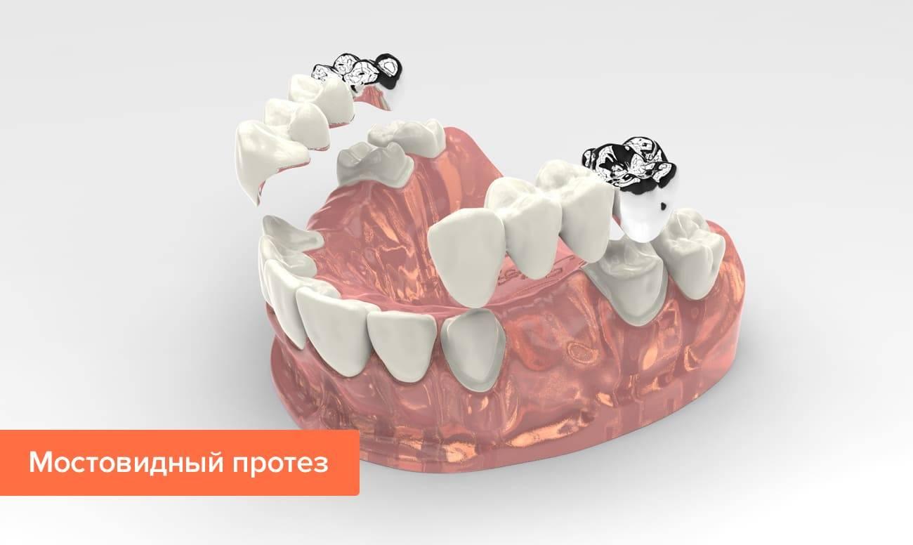 Цемент, клей и другие материалы для фиксации зубных коронок в клинике и домашних условиях