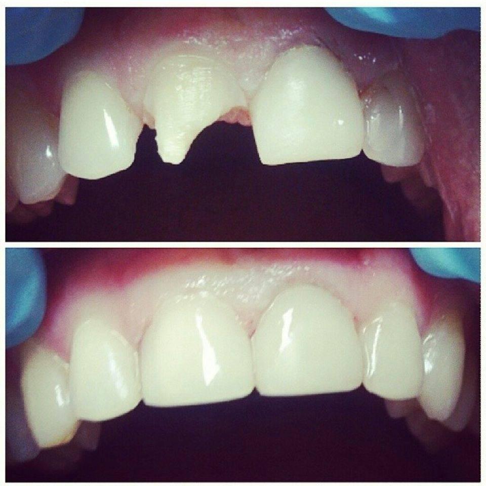 Методы восстановления зубной эмали