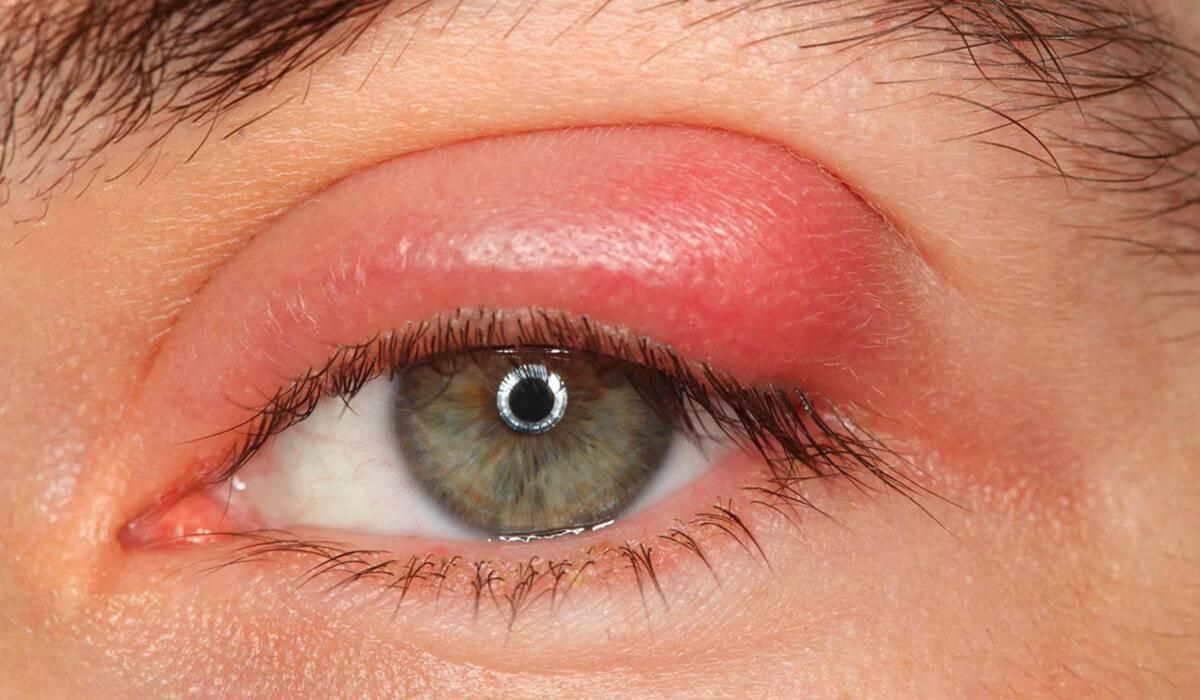 Особенности внутреннего ячменя на глазу (мейбомита), симптомы и лечение