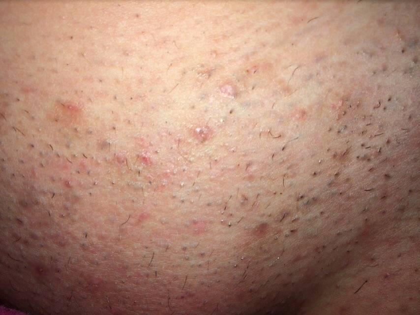 Как избавиться от прыщей в интимной зоне после бритья