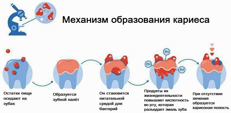 Пародонтоз передается от человека к человеку