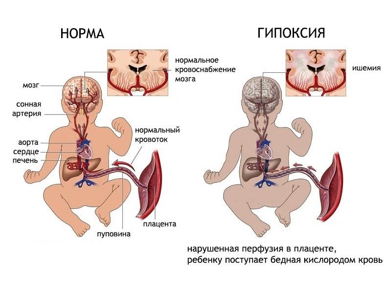 Гипоменорея – симптомы и тактика лечения