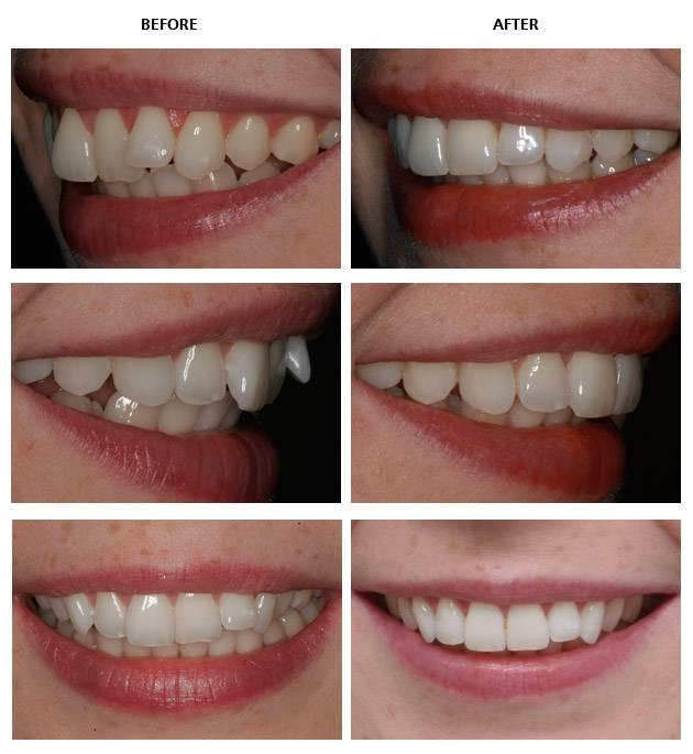 Как выровнять зубы без брекетов у детей и взрослых?