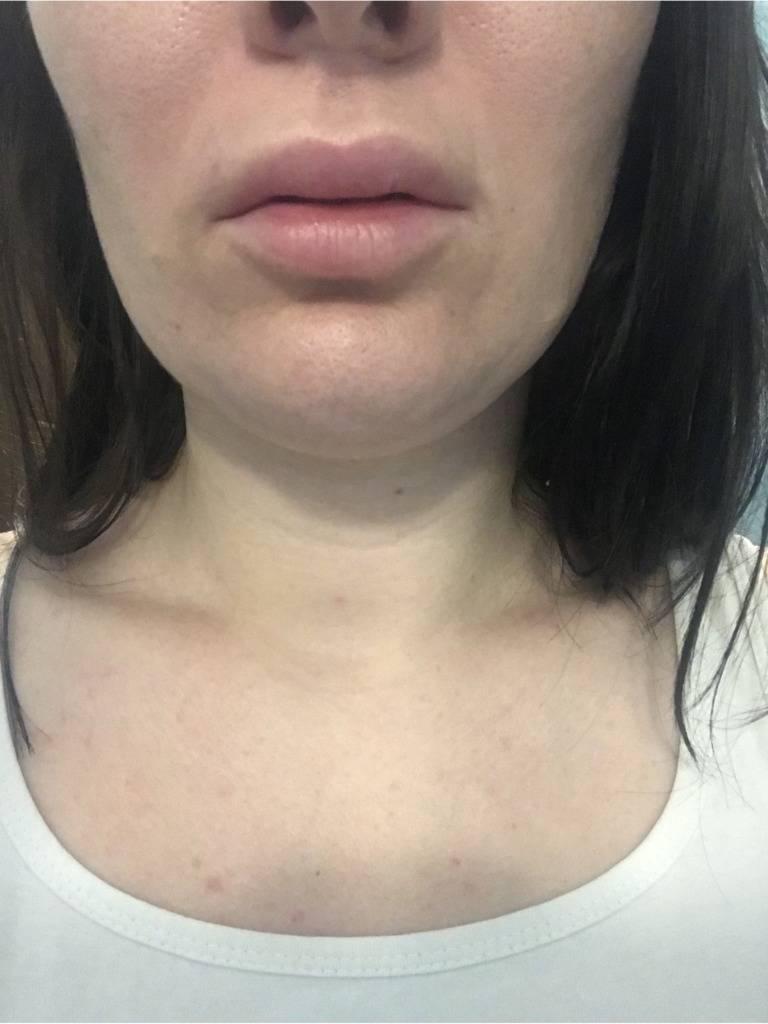 Чем мазать губы после увеличения гиалуроновой кислотой?