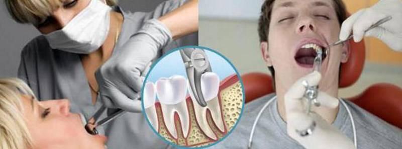 Какие обезболивающие лекарства после удаления зуба можно пить от зубной боли и снятия воспаления?