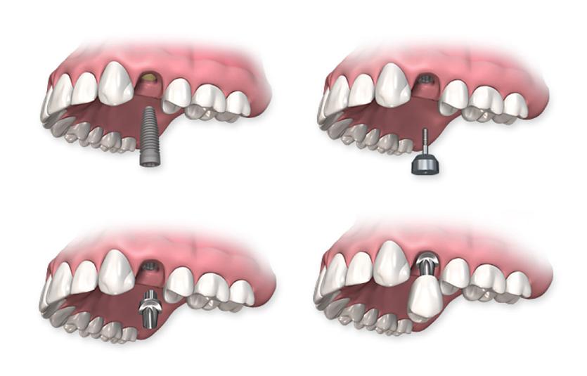Имплантация зубов: плюсы и минусы, обзор методик, цены и акции на имплантацию