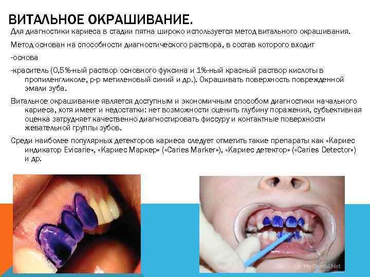 Кариес: методы диагностики заболевания зубов у стоматолога