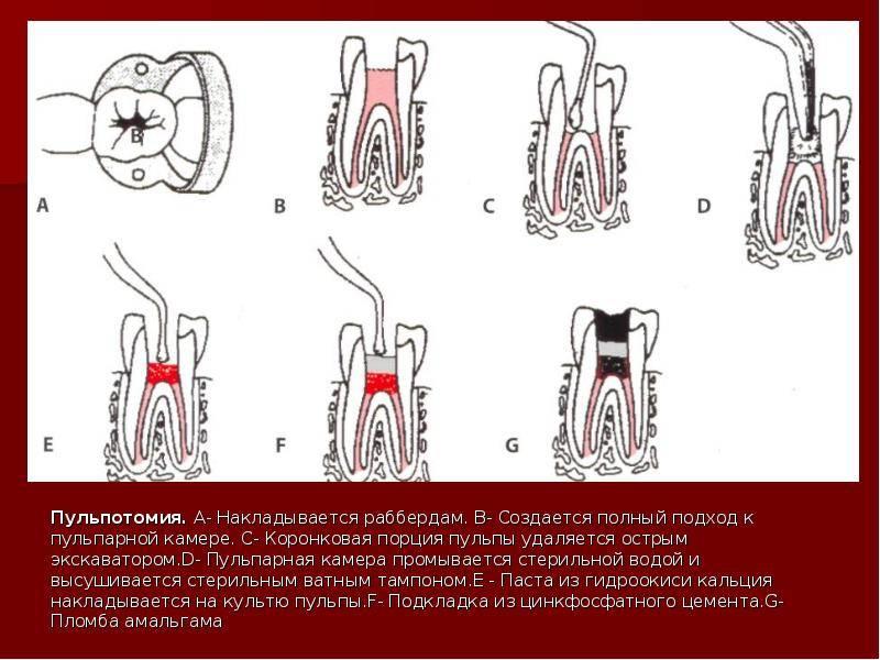 Удаление пульпы зуба: показания, этапы и осложнения пульпита