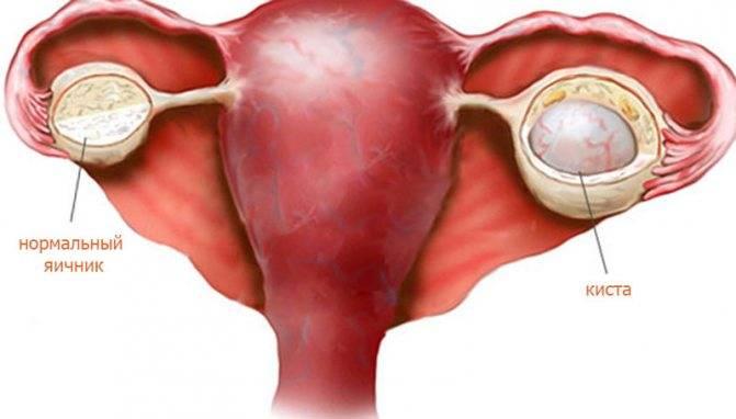 Киста на правом яичнике у женщин: симптомы и лечение образования