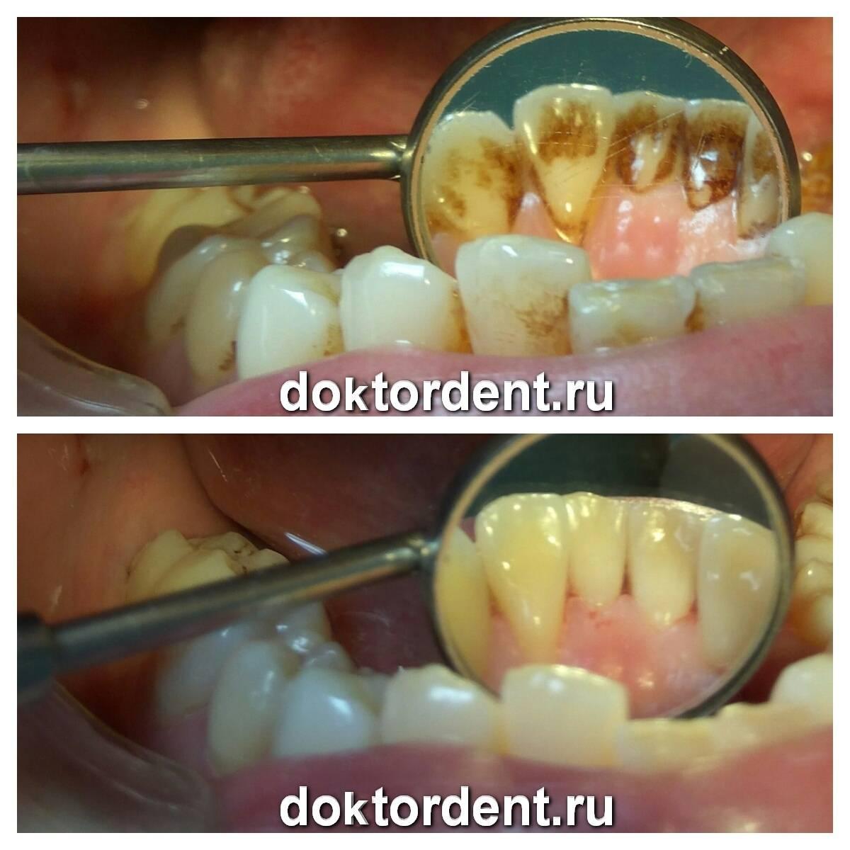 Можно ли делать чистку и отбеливание зубов при беременности?