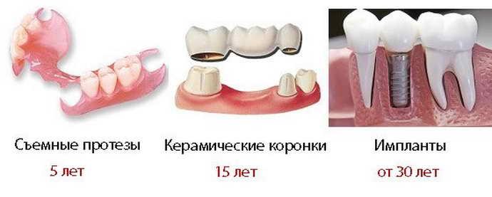 Виды зубных протезов и их особенности