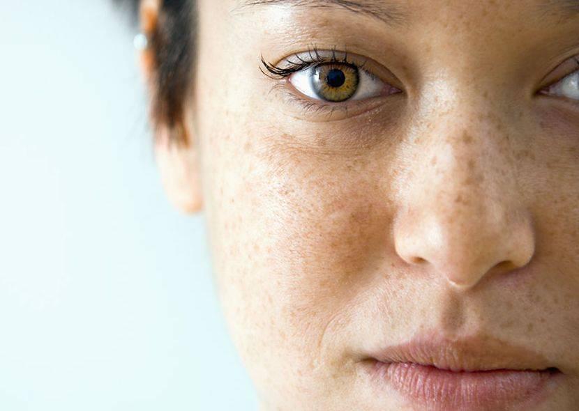 Желтый цвет лица при сердечной недостаточности