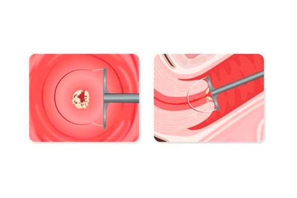 Прижигание эрозии жидким азотом: насколько эффективна процедура. лечение эрозии шейки матки азотом