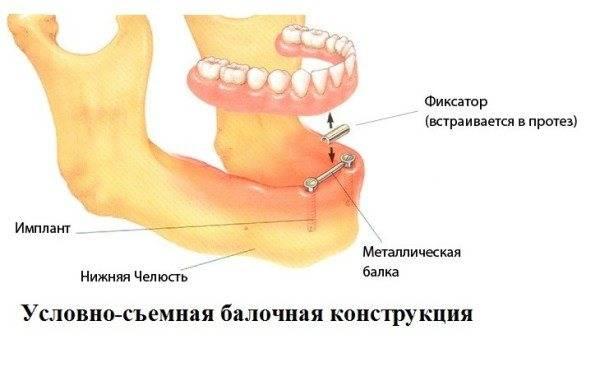 Съемный протез на имплантах: особенности установки, стоимость, плюсы и минусы