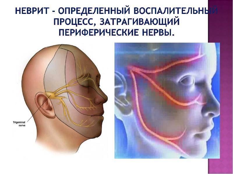 Невралгия тройничного нерва: особенности развития патологического процесса и его коррекции. есть ли возможность полного излечения?