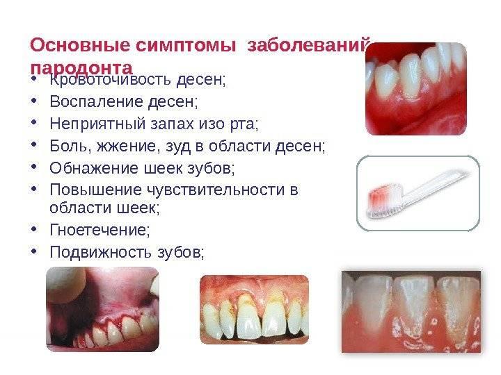 Онемение зубов верхней челюсти