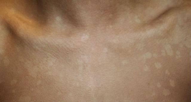 Коричневые пятна на теле: фото, причины, лечение