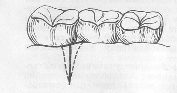 Стоит ли и как бороться с отёком после удаления зуба