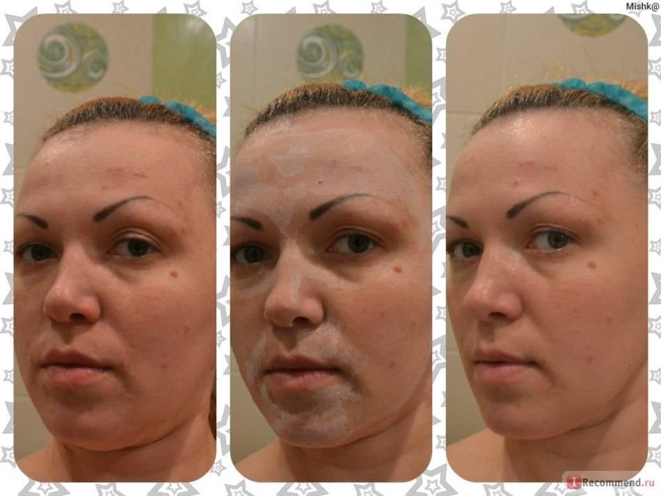 Полисорб: 8 масок для лица, рецепты дерматолога для очищения кожи