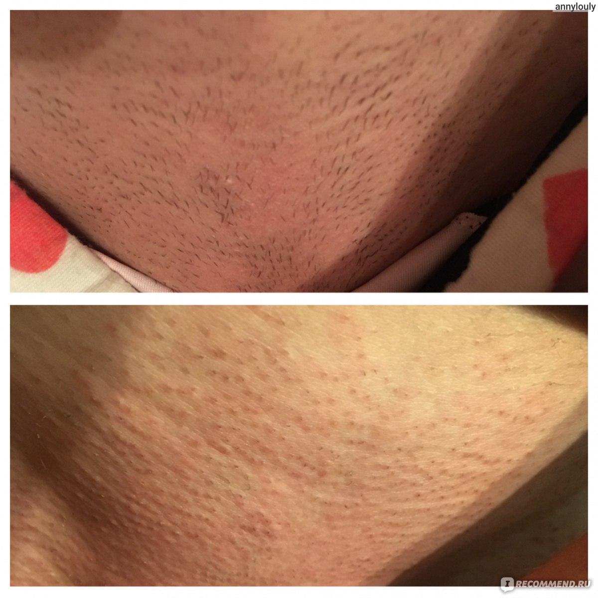 Лазерная эпиляция. сколько процедур нужно для полного удаления волос?