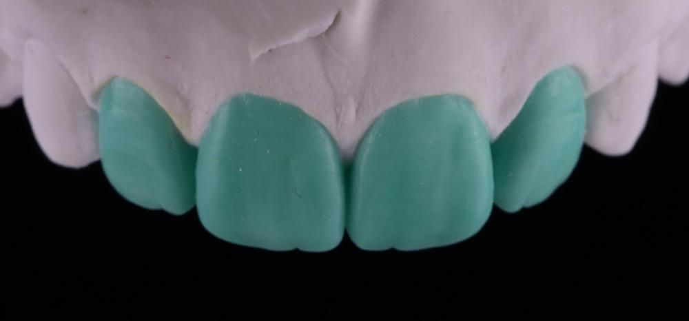Восковое моделирование зубов как вариант планирования результата лечения