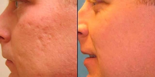 Эффективные мази в лечении кожных покровов при ожогах