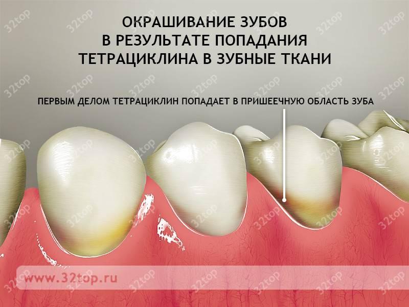 Тетрациклиновые зубы: причины возникновения, симптомы и особенности лечения. отбеливание тетрациклиновых зубов: симптомы, диагностика и способы лечения с фото
