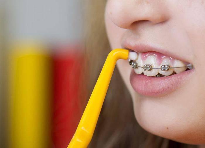 Выбор щетки для очистки брекетов и обзор щеток «oral b»