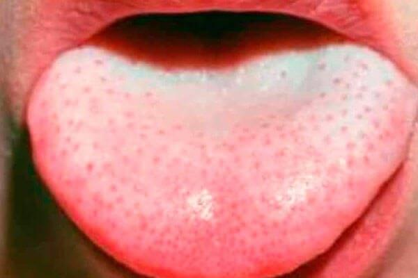 Причины появления красных пятен на языке ребенка и методы лечения