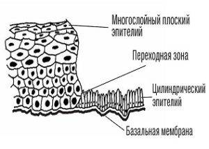 Причины и лечение эктопии шейки матки