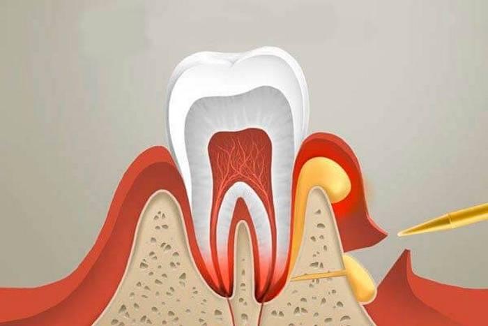 Как быстро снять опухоль и отек при зубном флюсе: список таблеток, мазей и других способов лечения