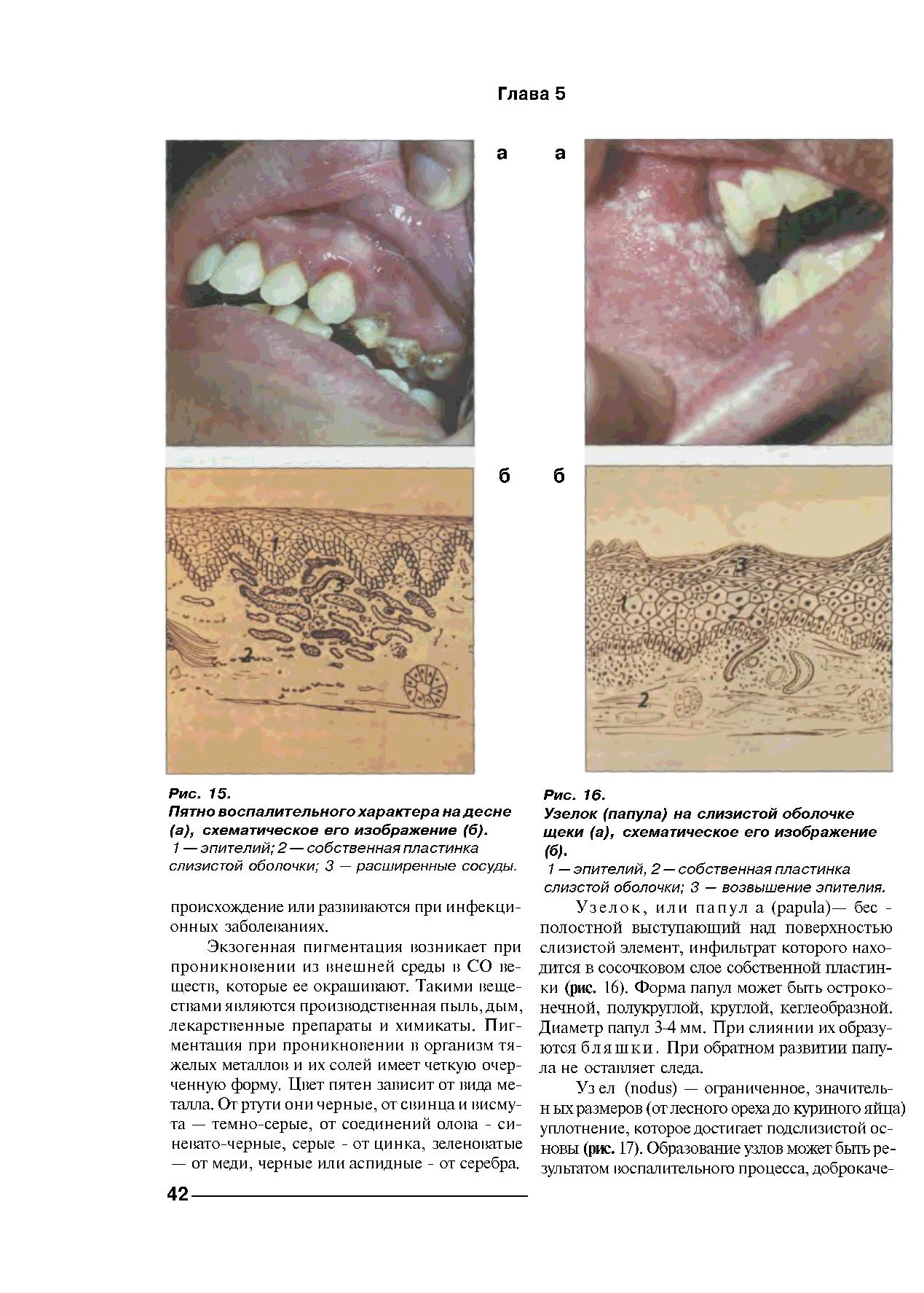 Предопухолевые заболевания слизистой оболочки полости рта