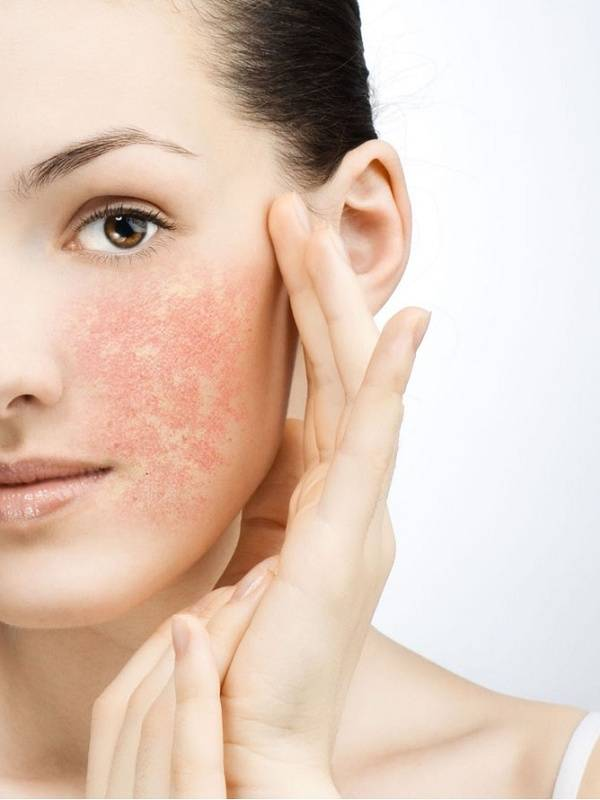 Шелушение кожи около рта: выясняем причины и устраняем дискомфорт