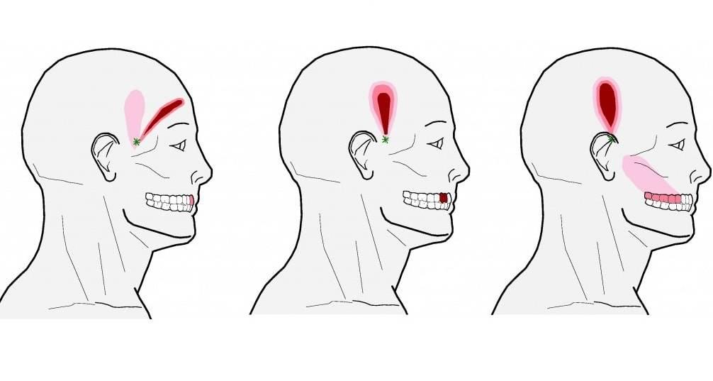 Самые эффективные способы снять острую зубную боль