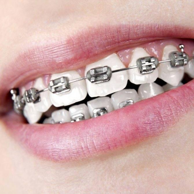 Первые шаги к красивой улыбке: как делают слепки зубов для брекетов и какие снимки нужны