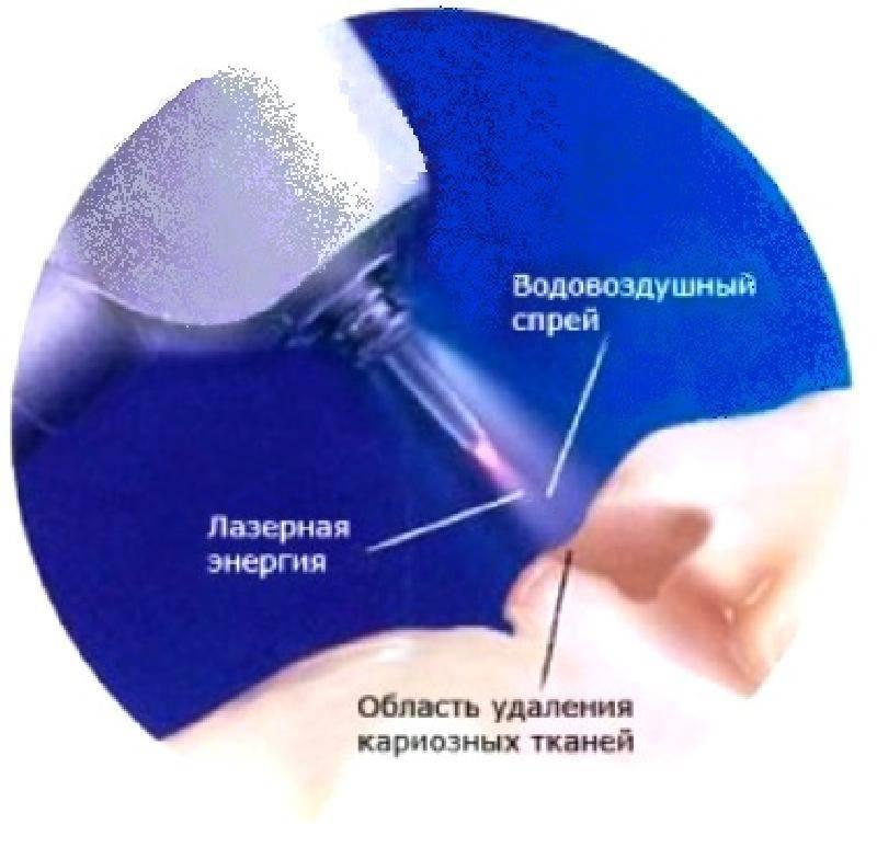 Технология icon - эффективное лечение без сверления